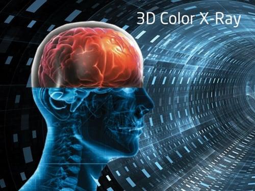 3D Colour X-ray-1