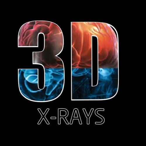 3D X-Rays