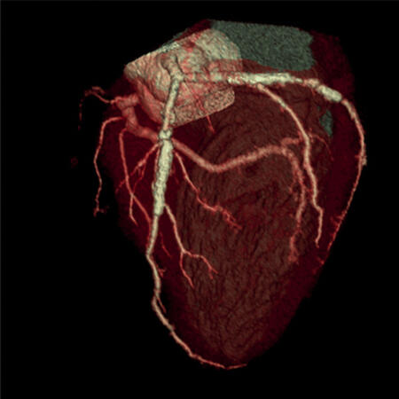 4D_Model_of_pumping_heart1