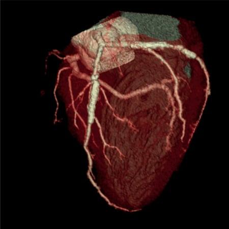 4D_Model_of_pumping_heart1