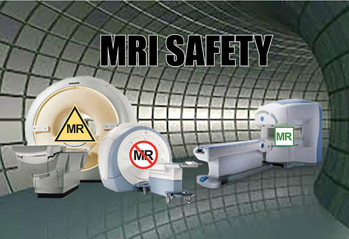 MRI Safety Concern