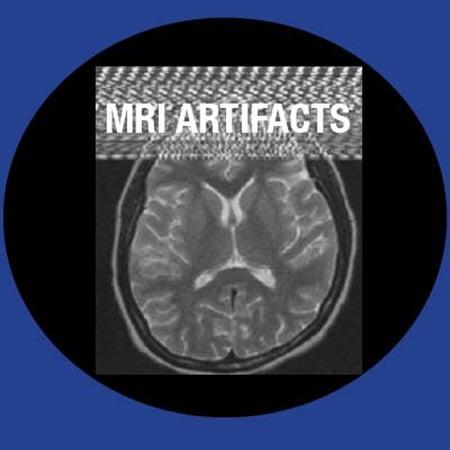MRI_Artifacts-1