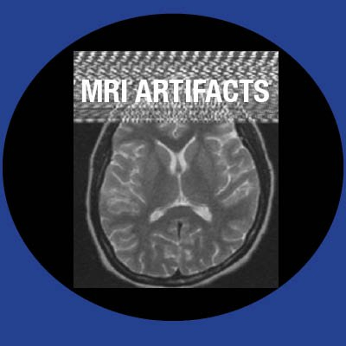 Most Common Artifacts in MRI