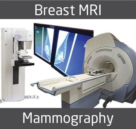 breastMRIorMammo-1